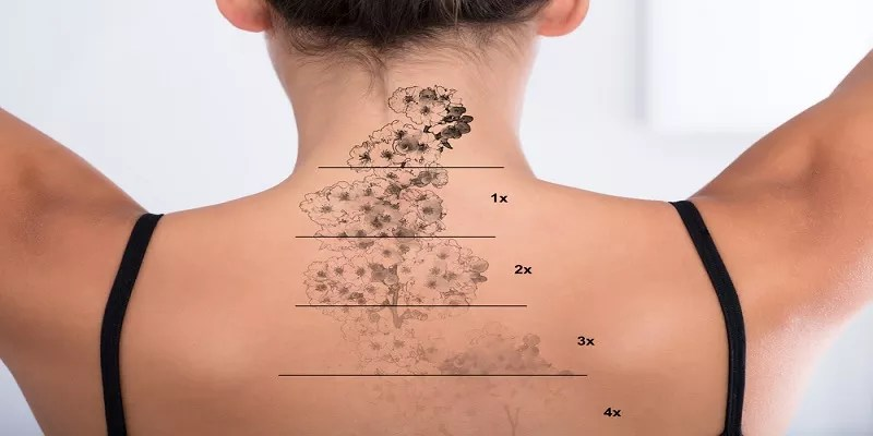 Read more about the article Things to Consider When Choosing NYC Laser Tattoo Lightening
