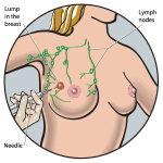 What is Breast Lump and how to diagnose it?