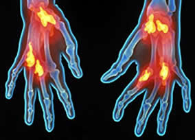 metotrexato - reumatoides