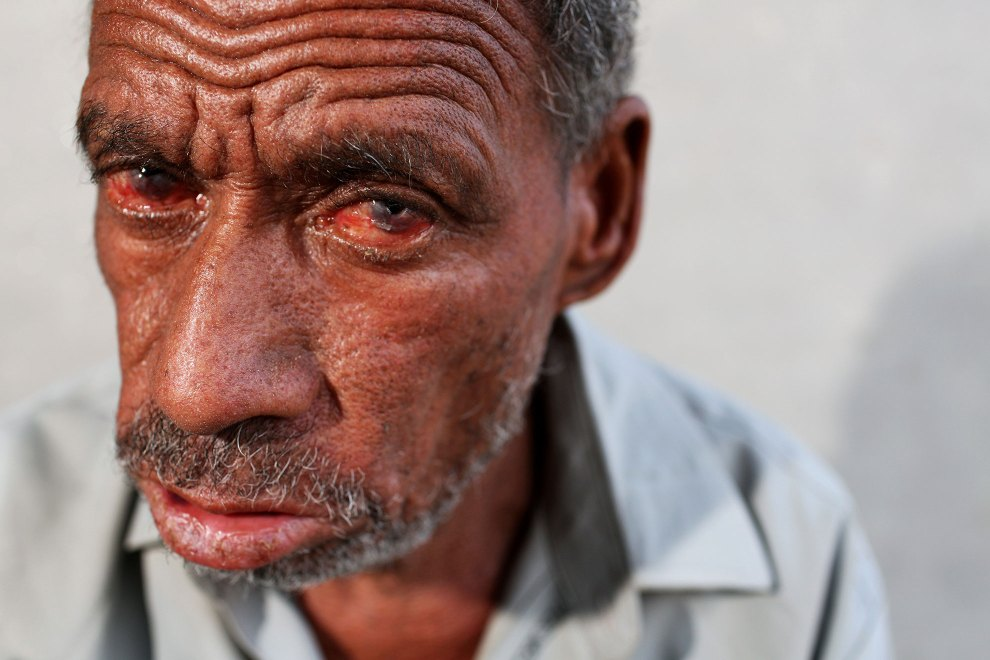 Chiman Singh, 50, outside of his home in the village of Teejaruhela on the India-Pakistan border. He suffers from severe arsenic and heavy metal poisoning. He is one of many in his village suffering from severe health issues believed to be caused by excessive pesticide use in the region.