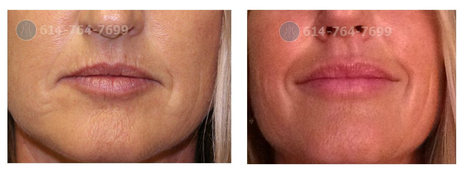 Juvederm Before and After in Columbus OH - ROXY Plastic ...