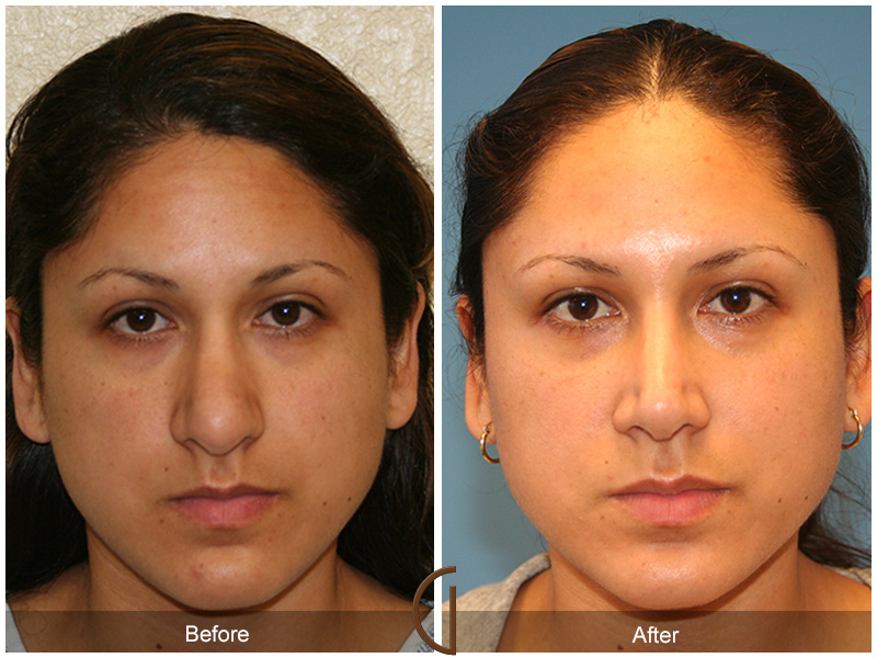 Before & After Rhinoplasty 11  Orange County Nose Job