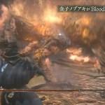 燃え盛る番犬を討伐せよ!『ブラッドボーン』金子ノブアキさんがついに最後の死闘に挑む!