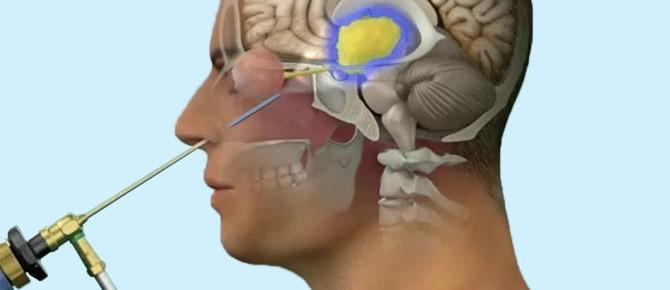 Los efectos del craneofaringioma en la glndula pituitaria  Gamma Knife