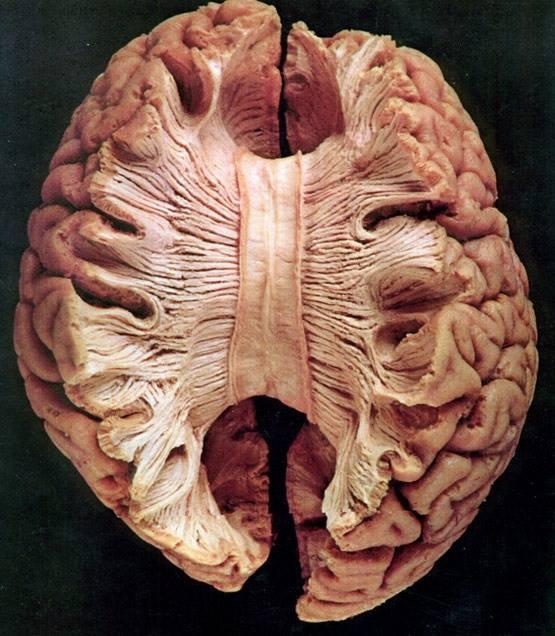 El síndrome de la mano extraña o alienígena. Imagen obtenida de: https://gammaknife.com.ec/cuerpo-calloso-cerebro/