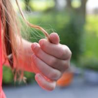 Microtransplante para lograr un cabello natural #MicrotransplanteCapilar