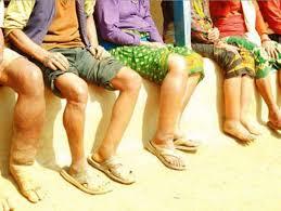 हात्तिपाईलेको औषधी खुवाउने अभियान : खानीगाउँ र पाङमा बढि संक्रमण