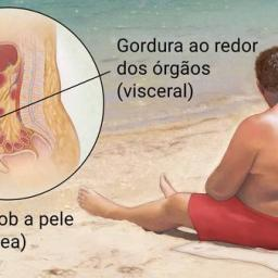 Obesidade afeta um em cada cinco brasileiros e aumenta risco de doenças graves como diabetes e câncer