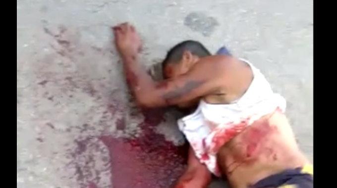 【閲覧注意】 交通事故で足が無くなっている男性が苦しんでいます。