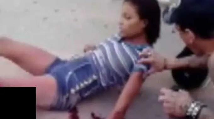 【閲覧注意】 バイクの事故で左足が無くなった若い女性がパニックになっている。