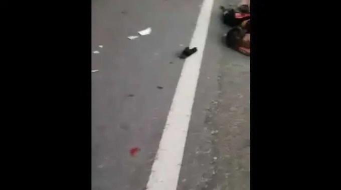 【閲覧注意】 交通事故で原形が無くなったブラジルの兵士。