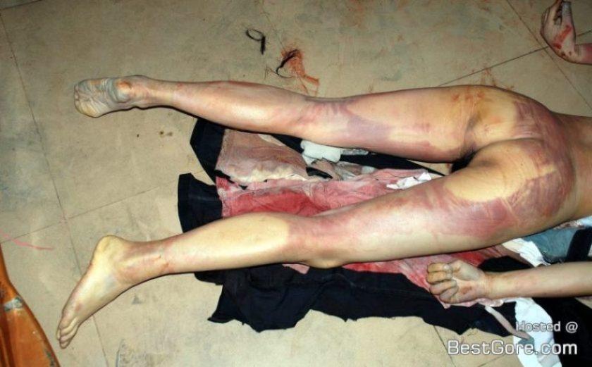 【閲覧注意】 命を落とした女性の現場検証から遺体の司法解剖まで。
