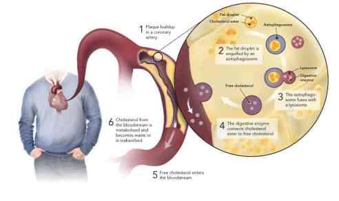 Cellular autophagy could reduce cholesterol