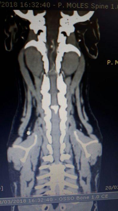 Tomografia de hérnia de disco cervical