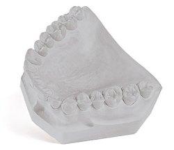 Mounting Stone Dental Gypsum