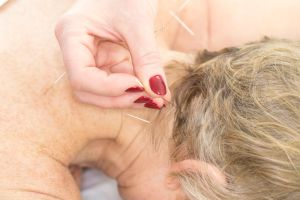 a hand with red nail polish putting in acupuncture needles into the neck of a patient