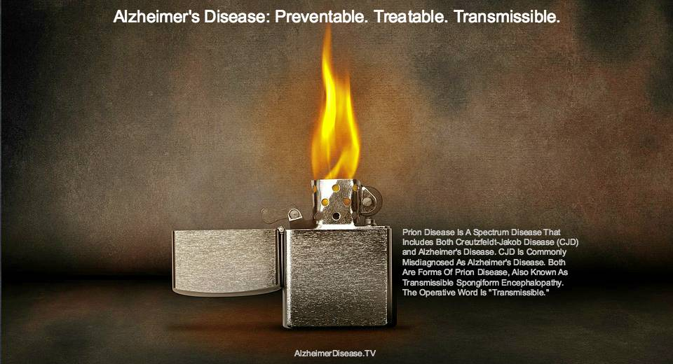 CJD and Alzheimer's disease transmissible