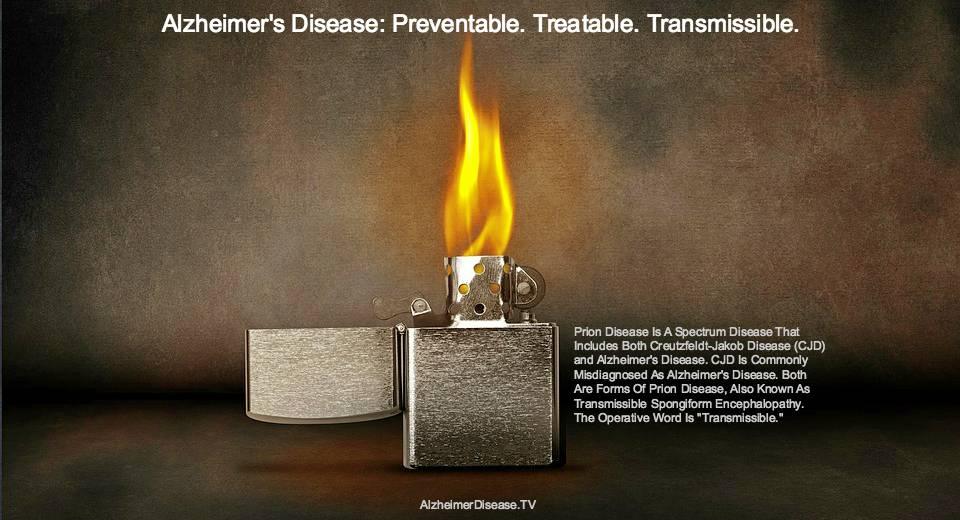 CJD and Alzheimer's disease transmissible