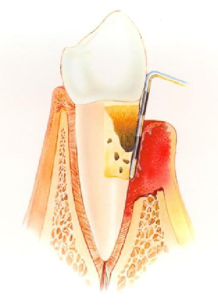 Gáspár Dental ínysorvadás kezelés utolsó stádium