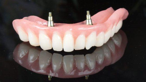 Stabil fogsor, fogsor stabilizálás, implantátum és fogsor, rögzített protézis, gáspár dental, gaspar medical center