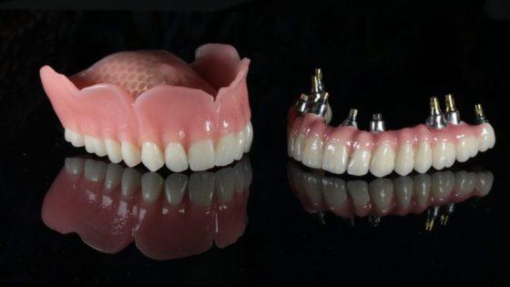 implantátum beültetés, implantátum fogsor, fogimplantátum, Stabil fogsor, fogsor stabilizálás, implantátum és fogsor, rögzített protézis, gáspár dental, gaspar medical center