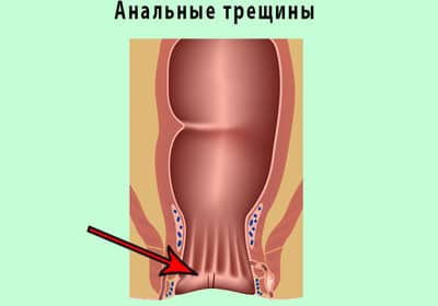Prosztata fájdalom a hátsó áthaladásban