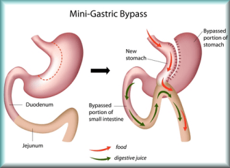 price of Mini gastric by-pass in france