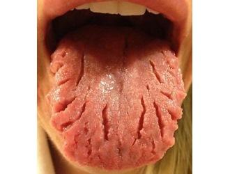 Как увеличить количество слюны во рту