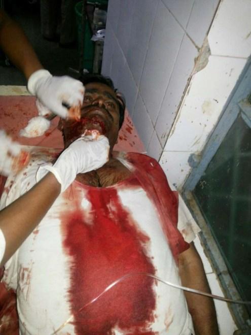घटना के बाद अस्पताल में भर्ती गंभीर रूप से घायल नरेंद्र यादव का फाइल फोटो।