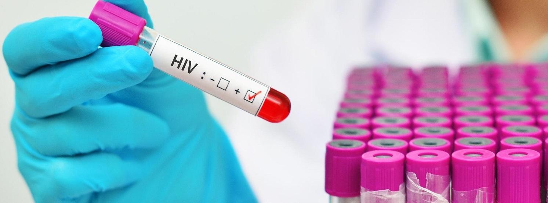 Como ter acesso aos antirretrovirais vivendo nos Estados Unidos