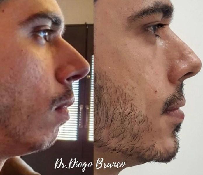 Dr. Diogo Branco esclarece dúvidas sobre o procedimento