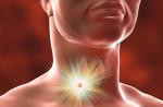 Waspadai Penyebab Kanker Tenggorokan dan Gejalanya