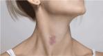 7 Cara Ampuh Menghilangkan Bekas Cupang di Leher