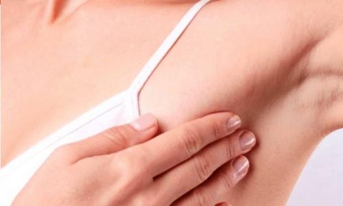 Simptomat dhe shenjat e para që vijnë nga kanceri i gjirit