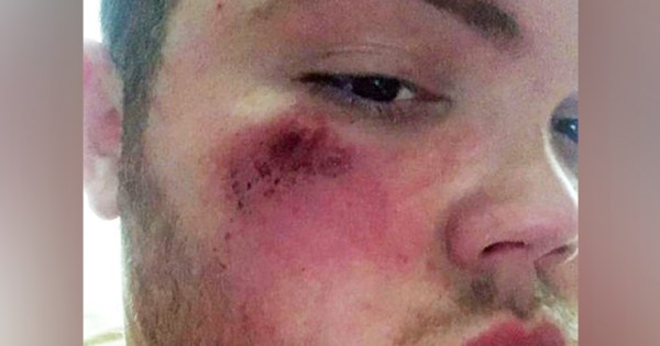 Dean Wheeler is pictured with cuts and bruises on his face after homophobic attack