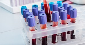A rack of blood filled test tubes, one being lifted out