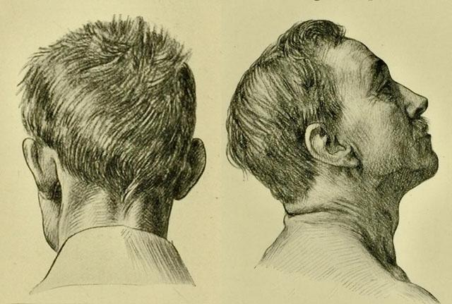 anatomia-humana-para-artistas-detalles-del-cuello-de-un-joven