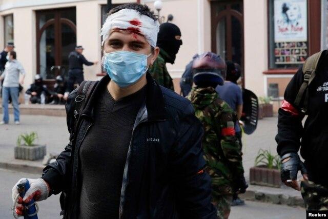 Пророссийский демонстрант после столкновений 2 мая 2014 года в Одессе.