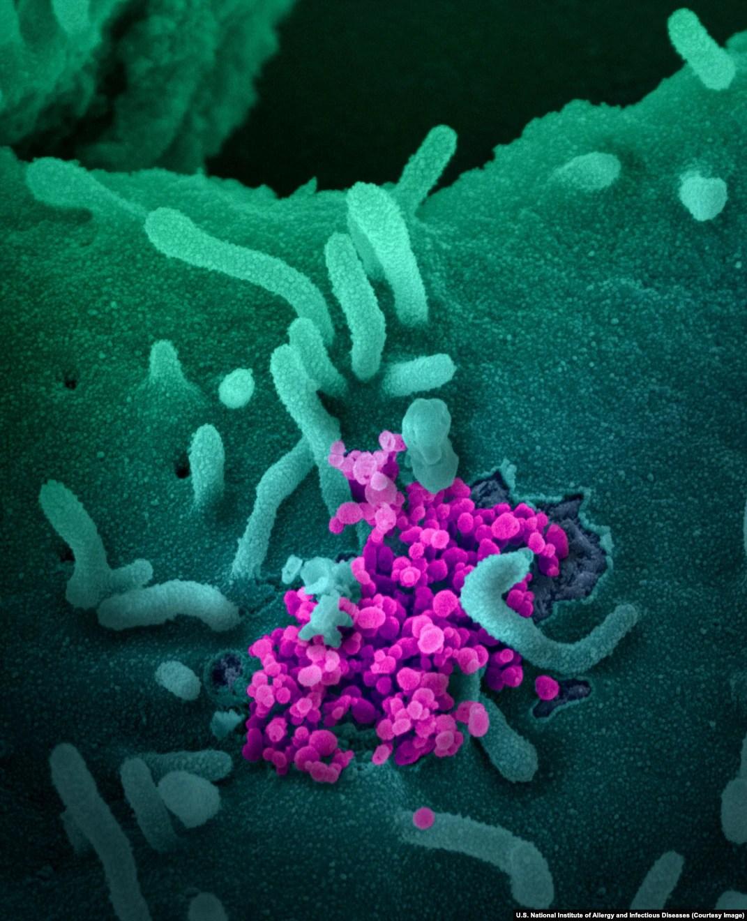 Covid 19 Virus Microscope