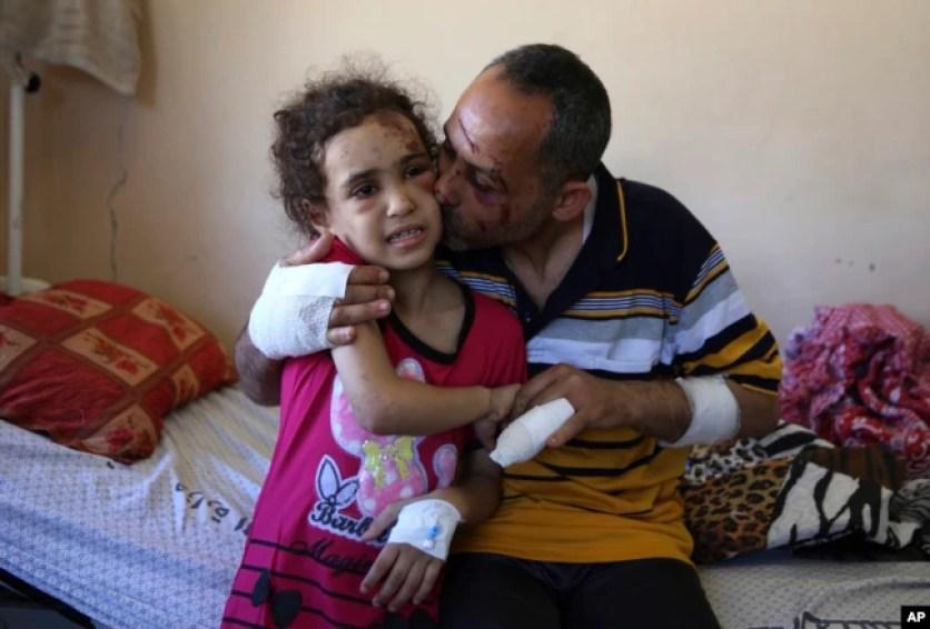 Suzy Ishkontana, 7 tahun, dicium ayahnya Riad Ishkontana, di Shifa Hospital, Gaza City (18/5). Ibu dan ke-4 saudara kandung Suzy meninggal dalam serangan udara Israel.