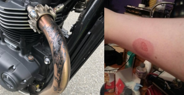 Motorcycle Exhaust Temperature Preventing