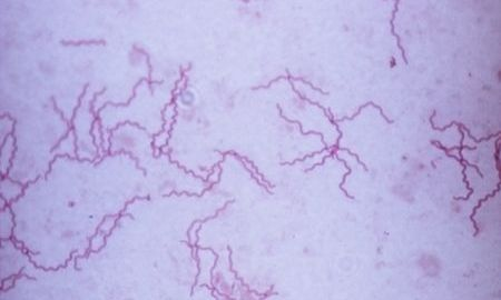 kako-se-prenosi-sifilis
