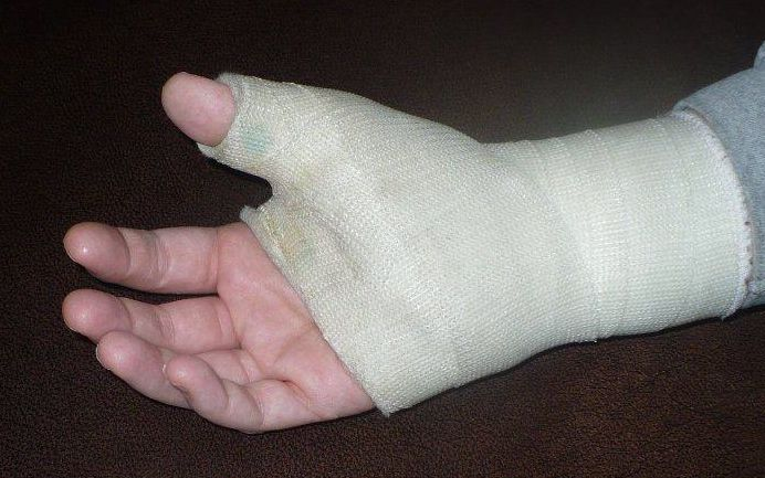 The author's right thumb cast.