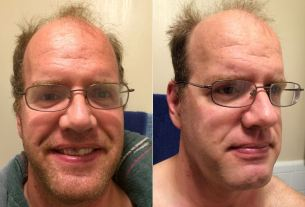 Dollar Shave Before and After  Image: Dakster Sullivan
