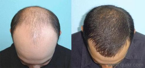 home-remedies-baldness-hair-growth hair fall