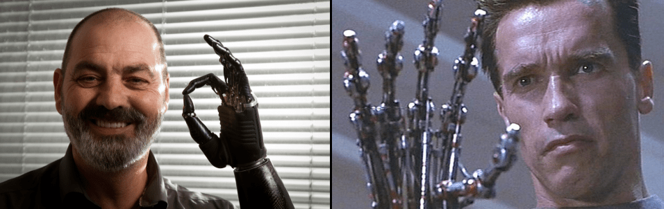 "The bebionic3: ""Terminator Hand"" Prosthetic"