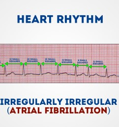 measure the r r intervals to assess if the rhythm is regular or irregular 1 [ 1280 x 720 Pixel ]