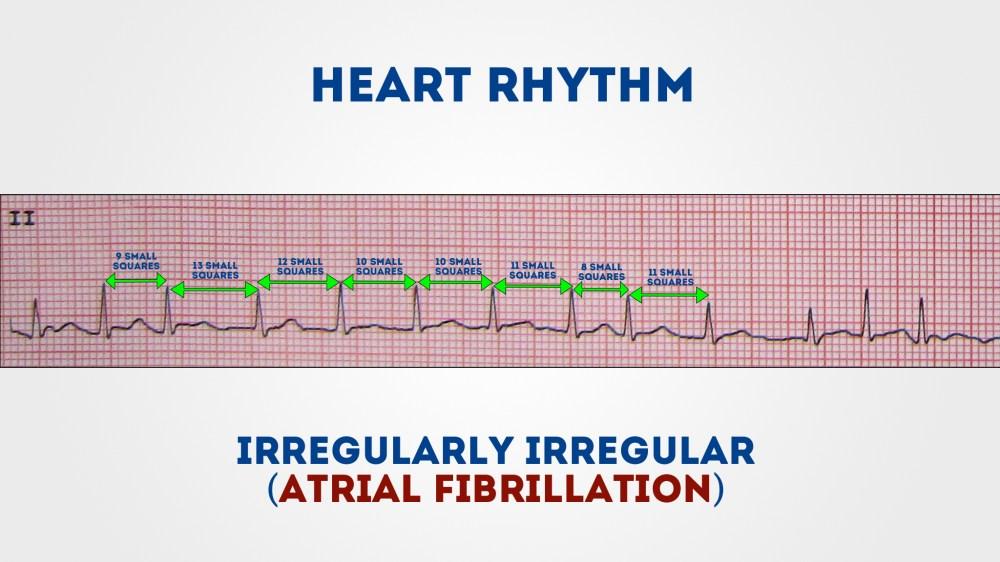 medium resolution of measure the r r intervals to assess if the rhythm is regular or irregular 1
