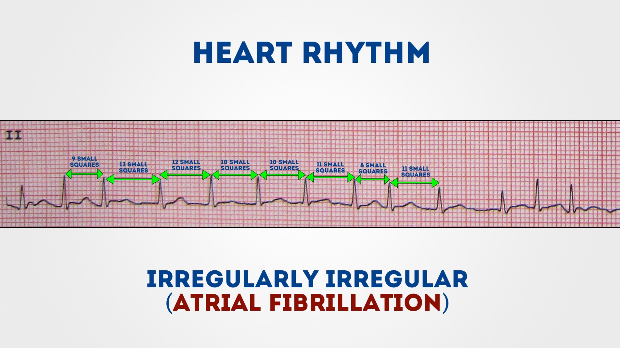 hight resolution of measure the r r intervals to assess if the rhythm is regular or irregular 1