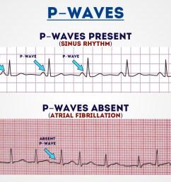 p waves 1 [ 1280 x 720 Pixel ]